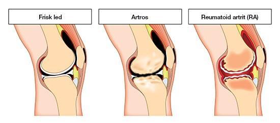 jamforelse mellan reumatoid artrit och artros